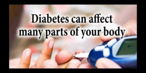 Diabetes can affect many parts of your body