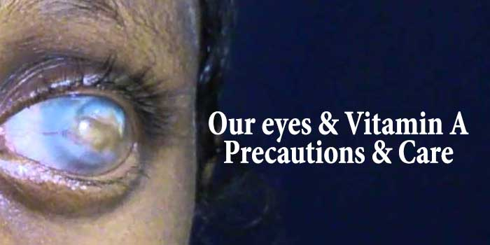 Our eyes and Vitamin A – Precautions & Care